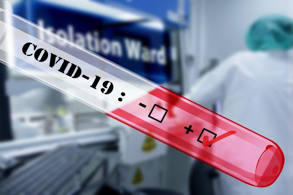 Testarea criză epidemiologică